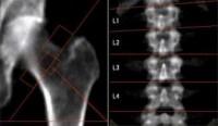 Röngenfoto van het heupbeen van een astronaut