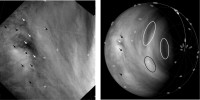 De wind blijkt op Venus steeds harder te waaien